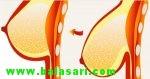 دلایل و نشانه های افتادگی سینه!! بهترین روش درمان