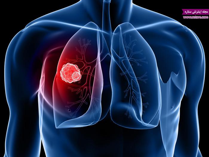 سرطان ریه چیست؟ + علائم سرطان ریه و راههای درمان آن