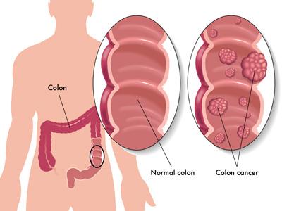مهم ترین نشانه های خطرناک سرطان روده
