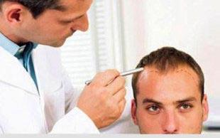 عوارض کاشت مو,کاشت موی طبیعی,مراحل کاشت مو