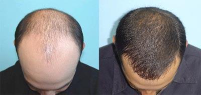 مراحل کاشت مو,پیوند موی طبیعی,ترمیم مو