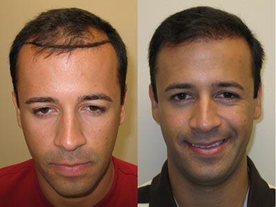 جامع ترین راهنمای کاشت مو و روش های کاشت و ترمیم مو