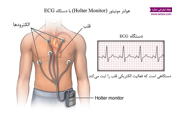 علت تپش قلب - درمان تپش قلب - دستگاه هولتر مونیتور - نوار قلب متحرک