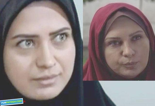 بوتاکس لعیا زنگنه بازیگر زن ایرانی